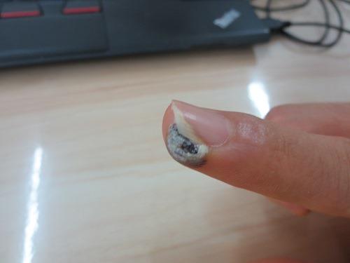 (写真4)液化窒素で治療してから2日後の様子、白く硬くなってくる