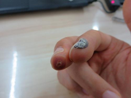 (写真5)指先が黒い、治療した部位の皮膚は壊死している