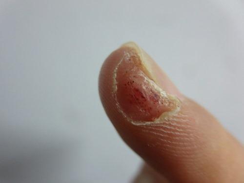 (写真7)カサブタがはがれ落ちた指先の状態